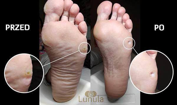 kosmetyka-lunula-zabieg-podologiczny